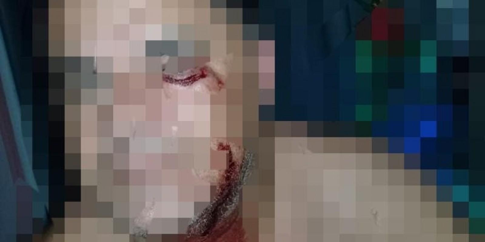 Homem foi agredido a paulada em Braço do Norte e recebe ameaça