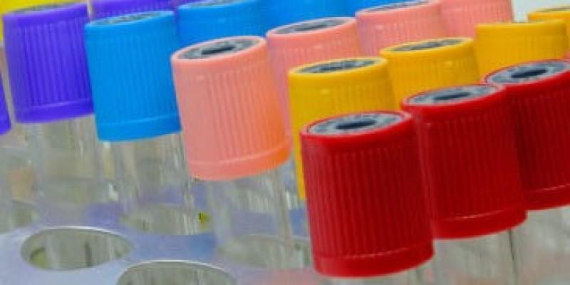 SL: secretaria de Saúde informa que recebe os resultados dos exames de coletas feitas em hospitais para Covid-19